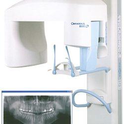 Компьютерный ортопантомограф
