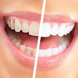 Мифы об отбеливание зубов