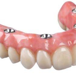 Покрывные зубные протезы